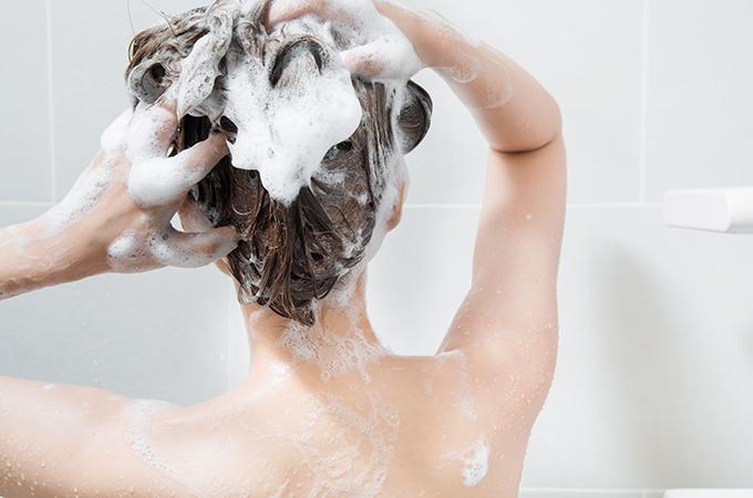 頭皮 湿疹 画像