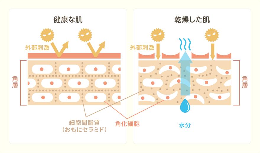 乾燥肌・乾皮症の仕組み