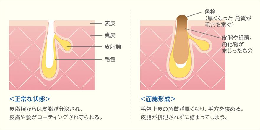 角栓の原因、仕組み