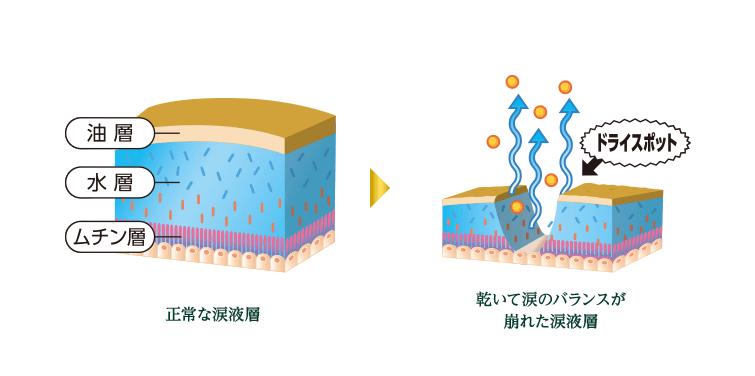 正常な涙液層 → 乾いて涙のバランスが崩れた涙液層